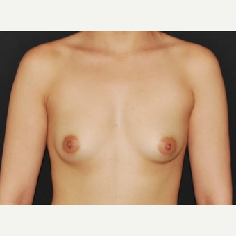 18-24 year old woman treated with Breast Implants before 3650957