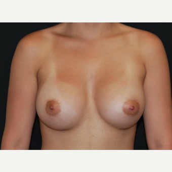 18-24 year old woman treated with Breast Implants after 3650957