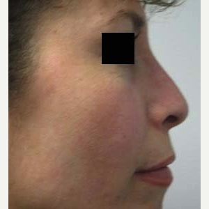 Rhinoplasty after 2993712