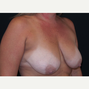35-44 year old man treated with Breast Lift with Implants before 3305191