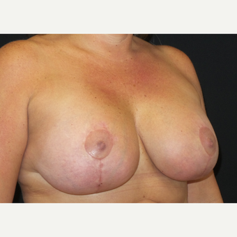 35-44 year old man treated with Breast Lift with Implants after 3305191