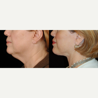 55-64 year old woman treated with Neck Lift before 3658822