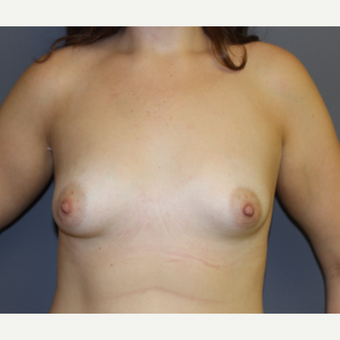 Bilateral Breast Augmentation before 3486998