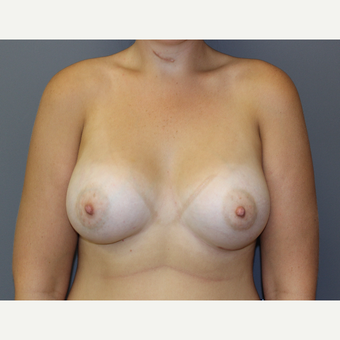 Bilateral Breast Augmentation after 3486998
