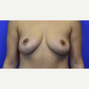 45-54 year old woman treated with Breast Lift after 3325845