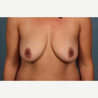 45-54 year old woman treated with Breast Lift before 3325845