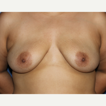 35-44 year old woman treated with Breast Augmentation before 3695936