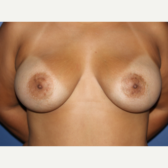 35-44 year old woman treated with Breast Augmentation after 3695936