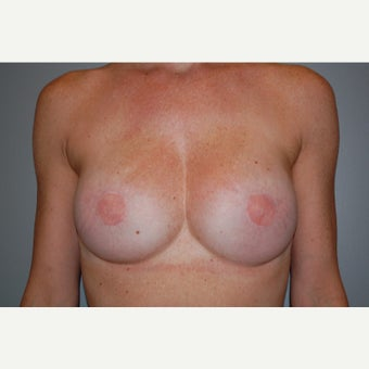 33 year old woman treated with Breast Reconstruction