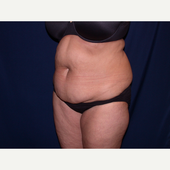 45-54 year old woman treated with Tummy Tuck before 3487413