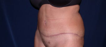 45-54 year old woman treated with Tummy Tuck after 3487413