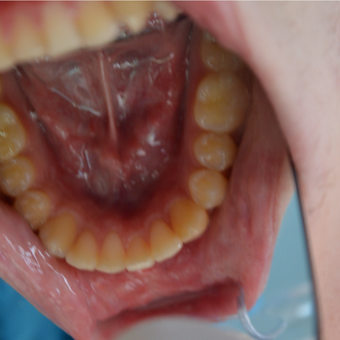 18-24 year old man treated with Invisalign after 3332348