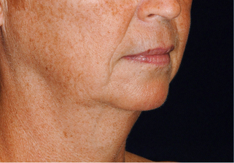 Lower Facial Rejuvenation: Neck Lift 926257