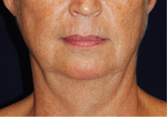 Lower Facial Rejuvenation: Neck Lift before 926257