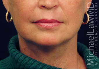 Lower Facial Rejuvenation: Neck Lift after 926257