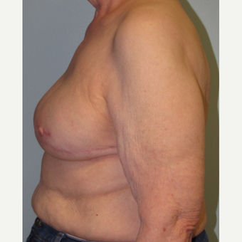 77 year old woman treated with Tissue Expander/Implant Breast Reconstruction + Nipple Reconstruction after 3097680