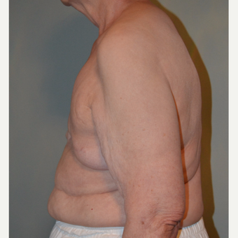 77 year old woman treated with Tissue Expander/Implant Breast Reconstruction + Nipple Reconstruction before 3097680