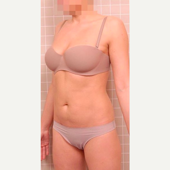 35-44 year old woman treated with Liposculpture before 3786728