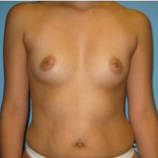 Breast Augmentation before 3665688