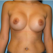 Breast Augmentation after 3665688
