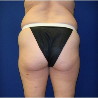 45-54 year old woman treated with Brazilian Butt Lift before 2356201