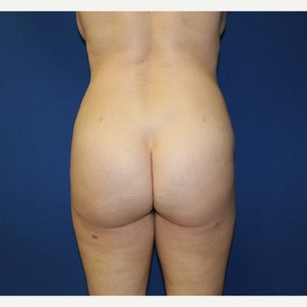 45-54 year old woman treated with Brazilian Butt Lift after 2356201