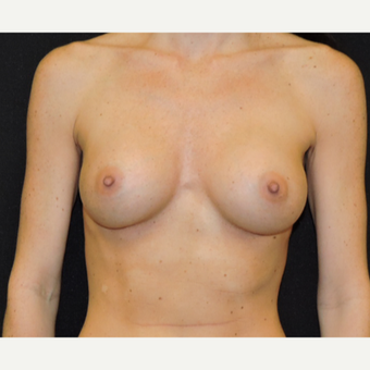 35-44 year old woman treated with Breast Augmentation after 3331349
