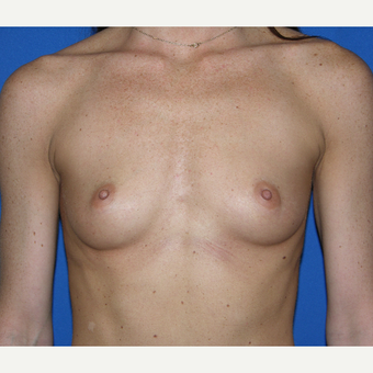 35-44 year old woman treated with Breast Augmentation before 3331349