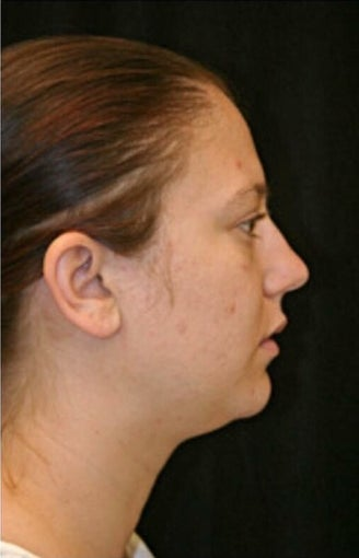 18-24 year old woman treated with Rhinoplasty before 3225733