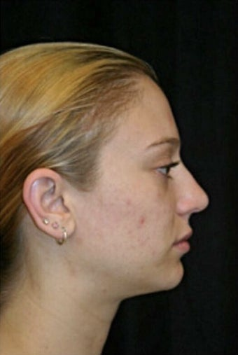 18-24 year old woman treated with Rhinoplasty after 3225733