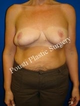 Revision Breast Surgery after 1011981
