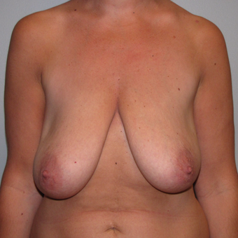 35-44 year old woman treated with Breast Lift before 3134451