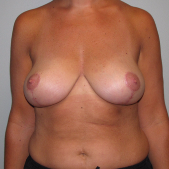 35-44 year old woman treated with Breast Lift after 3134451