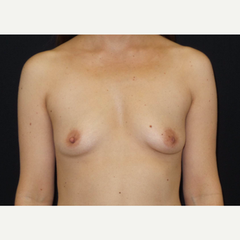 35-44 year old woman treated with Breast Augmentation before 3493837