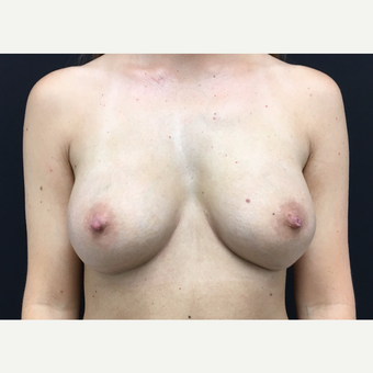 35-44 year old woman treated with Breast Augmentation after 3493837
