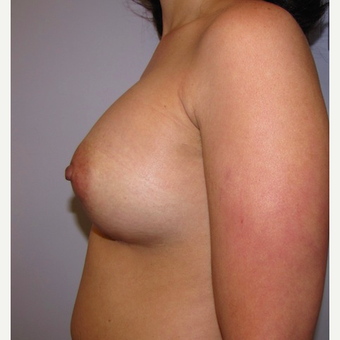 33 year old woman underwent Breast Augmentation with 380 cc silicone breast implants after 3452466