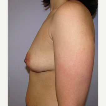 33 year old woman underwent Breast Augmentation with 380 cc silicone breast implants before 3452466