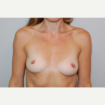 25-34 year old woman treated with Breast Augmentation before 3129523