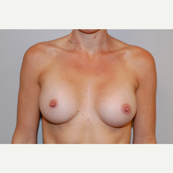 25-34 year old woman treated with Breast Augmentation after 3129523