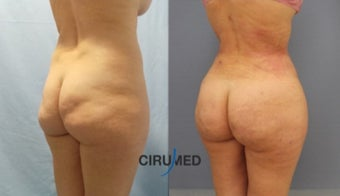 Large volume fat grafting (Brazilian butt lift) after 1891848