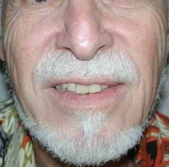 Male Nose Cancer Reconstruction after 984271