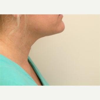 35-44 year old woman treated with Liposuction of the neck. after 2533740