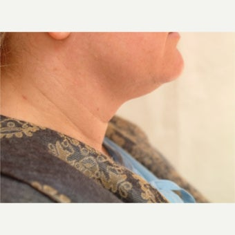 35-44 year old woman treated with Liposuction of the neck. before 2533740