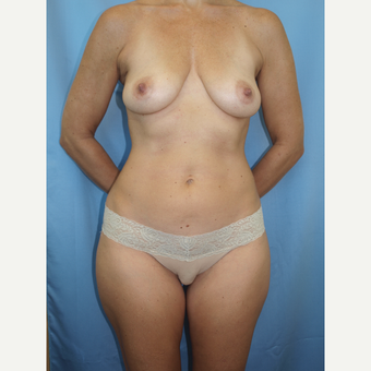 41 year old woman treated with Breast Fat Transfer and Breast Lift before 3585779