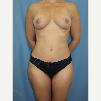 41 year old woman treated with Breast Fat Transfer and Breast Lift after 3585779