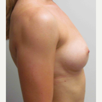 Breast Implants for this 26 Year Old Woman before 3005518