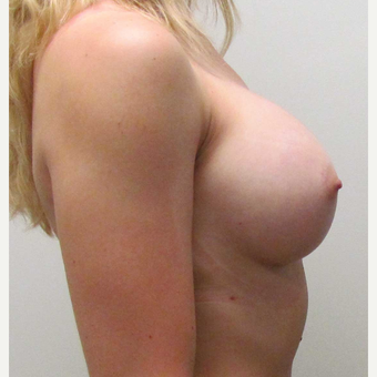 Breast Implants for this 26 Year Old Woman after 3005518