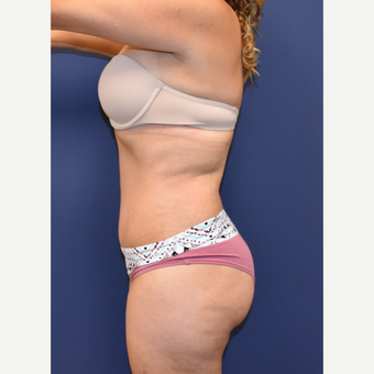 35-44 year old woman treated with Tummy Tuck after 3213941