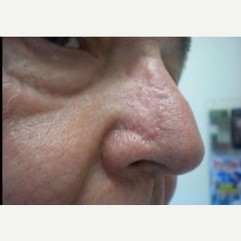 65-74 year old man treated with Mohs Surgery after 2640138