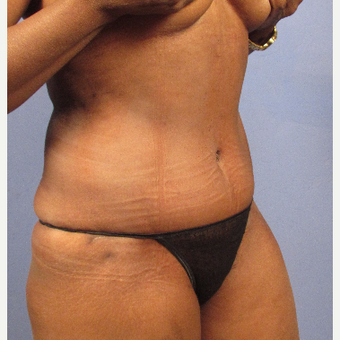 55-64 year old woman treated with Tummy Tuck after 3095827